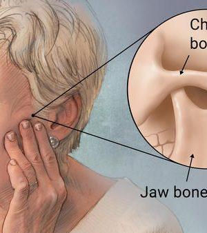 Temporomandibular-Joint-Dysfunction-Surgery-vs-Natural-Treatment