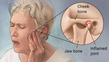 Temporomandibular-Joint-Dysfunction-Surgery-vs-Natural-Treatment